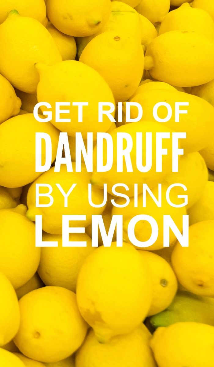 Lemon juice is proven to get rid of dandruff naturally. It's citric acid helps you fight dandruff from the roots of the hair follicles. Here are a few ...