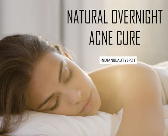 Natural Overnight Acne/ Pimple Treatment