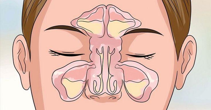 O leite de magnésia tem muitas utilidades, você já deve ter visto aqui --> descubra 10 usos desconhecidos do leite de magnésia Sabia que o leite de magnésia é ótimo para tratar rinite e sinusite? A sinusite é a inflamação da membrana que envolve as cavidades ósseas que entram em contato direto com o nariz.Elaocorre [...]