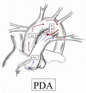 50 best Patent Ductus Arteriosus (PDA) images on Pinterest