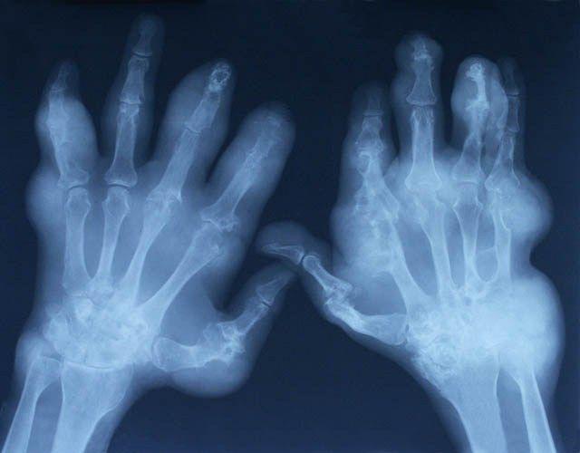 zapalenie kości i stawów