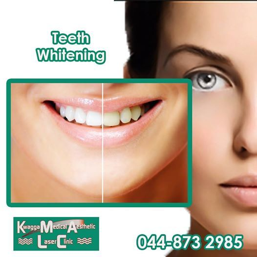 Everybody loves a beautiful smile. Kwagga Medical Aesthetic now offers you a bigger whiter smile with our Tooth Whitening treatment. Smile with confidence by making your appointment for your consultation. #healthyliving #vanitytreatments