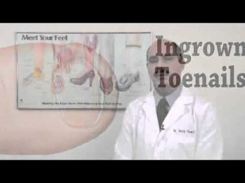 Treating An Ingrown Toenail Naturally