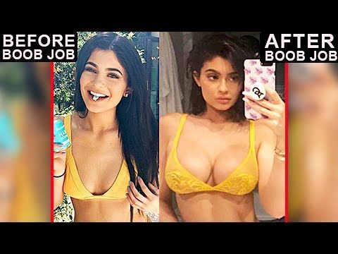 Kylie Jenner Breast Implants Proven | Before