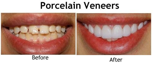 If you are looking forward to having dental veneers or you need to learn more about them, schedule a cosmetic dental consultation with Springvale Dental Clinic. We will be happy to discuss with you all the options and help determine what might be the best for you. Contact our office today!