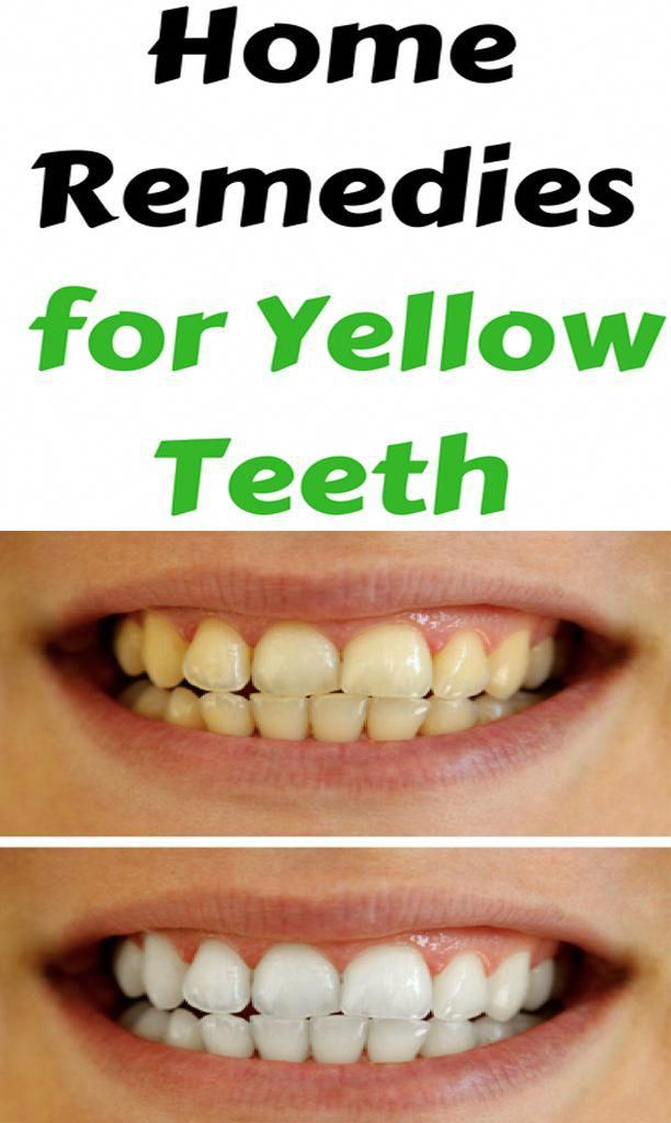 Yellow Teeth Baking Soda Teeth Whitening Home Remedies To Whiten