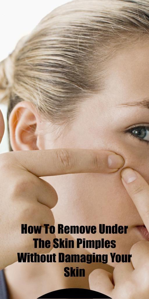 A parasitic pimple means acne that's developed…