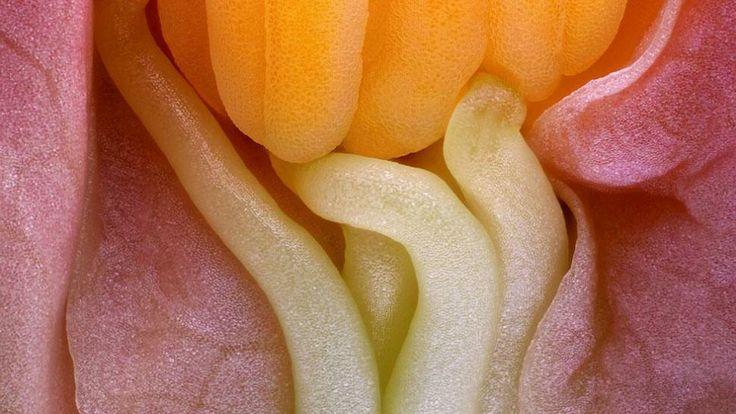 Monstruos diminutos: las 10 mejores imágenes microscópicas del año