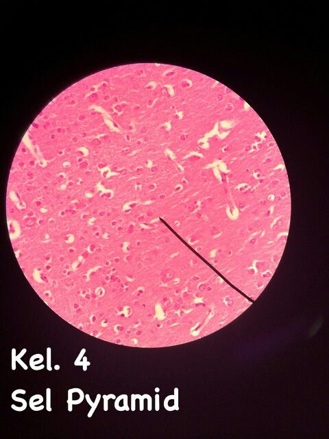 *sediaan cerebrum *HE *bagian cortex (krn d medulla tdk ad sel pyramid *sel pyramid yg besar : sel betz
