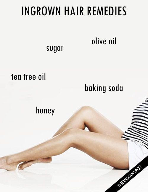 Home Remedies For Ingrown Hair That Really Work
