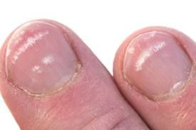 Ever wonder what those white spots on your nails are? - Here is your answer