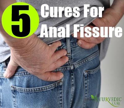 And hot How to cure an anal fissure really