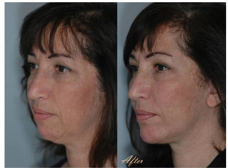 Fat Injections, Chin Implant, Submental Liposuction, Facelift, Lower Lid 88% Phenol Peel