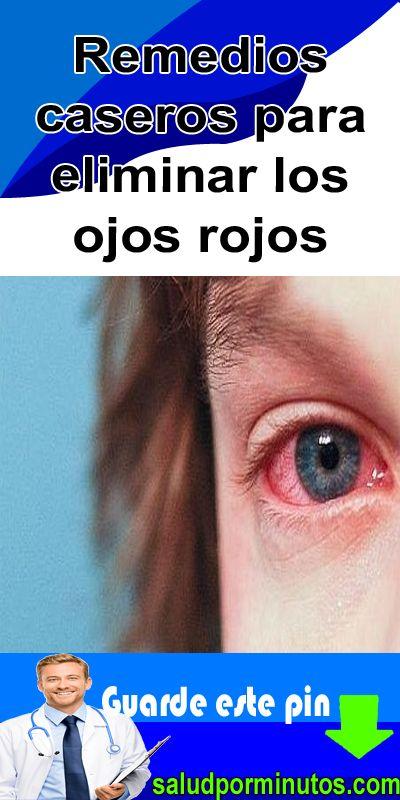Remedios caseros para eliminar los ojos rojos | Ojos rojos ...
