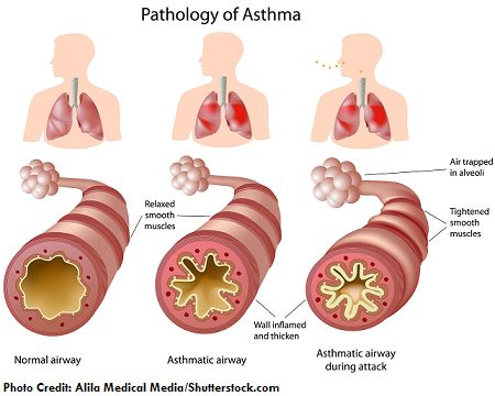 asthma, nclex, review, nursing, interventions #asthma in ...
