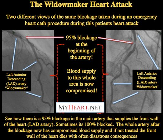 The heart attack of all heart attacks, the widowmaker is a 100% blockage of the LAD. Cardiologist explains risk, recovery, chances of recovering from widow maker heart attack.