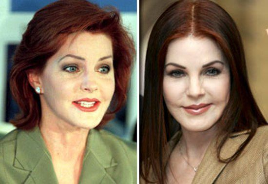 Priscilla Presley She used to only be known for being Elvis' wife.  Now at least she's known for another… terrible plastic surgery! dont know why she bothered to have it done but she paid a heavy price but had the guts to stand up and say I really blew it.  Be careful.