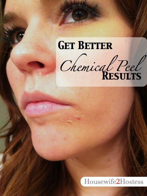 Housewife 2 Hostess : How To Get Better Chemical Peel Results