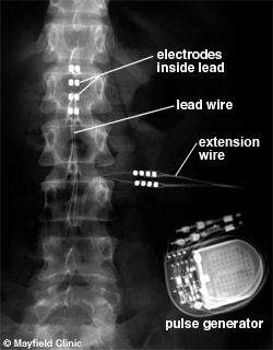 SCS - Spinal Cord Stimulation pain relief by injecting small currents into spinal cord to mask pain signals - ...  x-ray of the spine shows the spinal cord stimulation system