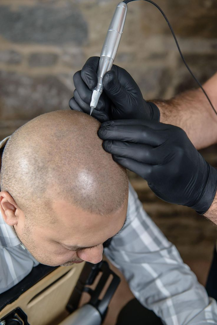 HAIR TATTOO? Micro Pigmentation for Balding Men - definitiv eine gute Idee, es gefällt uns!