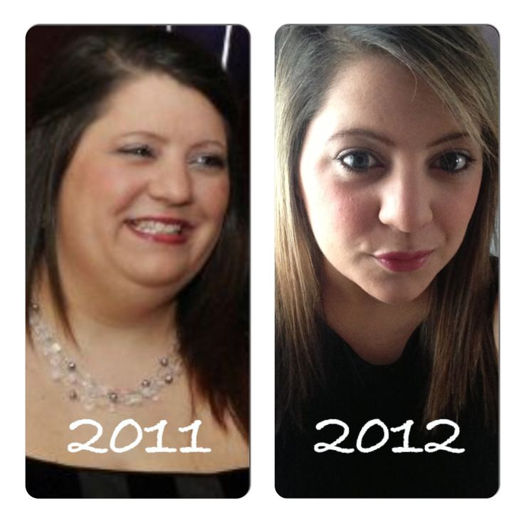 Weight loss before and after . Face change ...