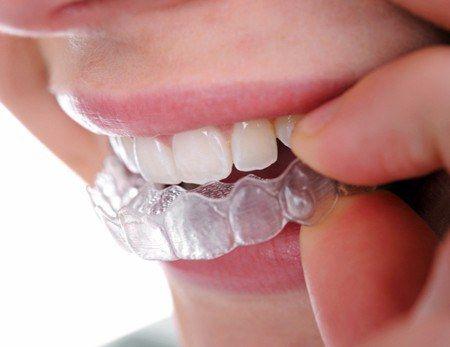 A láthatatlan fogszabályozás két fajtája | Uniklinik.hu - Együtt a specialisták