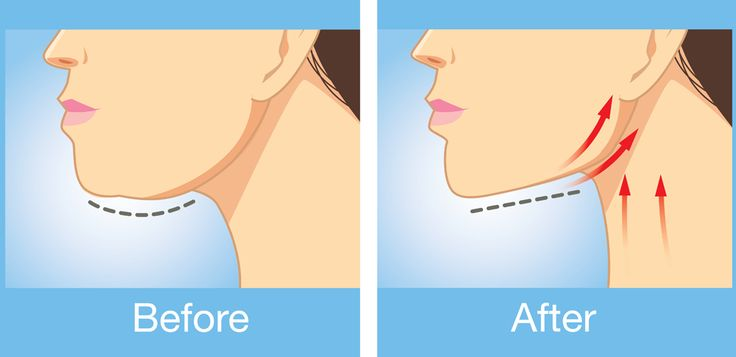 If You Have A Double Chin, These 5 Simple Exercises Will Get Rid Of It Quickly! - Diy Everything