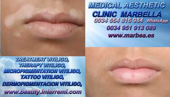 ;-::>>CURA PARA VITILIGO Vitiligo Cura Micropigmentación Vitiligo Vitiligo Maquillaje Permanente Vitiligo Tratamiento en Marbella or en Fuengirola