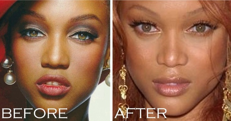 Chatter Busy: Tyra Banks Nose Job? What do you think? DrWigoda.com #celebrityplasticsurgery