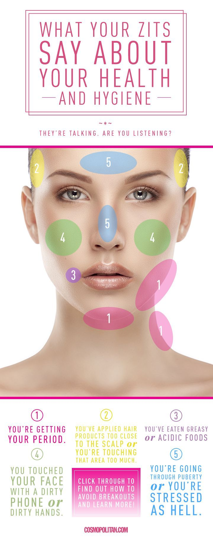 Breakouts actually don't just occur randomly, a pimple can send a pretty clear message about your health and hygiene, according to dermatologists. Keep this guide on hand to understand what your zits mean—and find out how to avoid them.   find more relevant stuff: http://skintightnaturals.com/