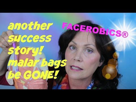 Renew Me® Laser Lift Success Story! MALAR BAGS be GONE! - YouTube