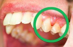 6 remèdes naturels pour traiter vos gencives douloureuses noté 4.67 - 3 votes La bouche peut être un nid à bactéries où les affections, les caries ou l'inflammation des gencives sont vite arrivées. L'inflammation de la gencive est par ailleurs très courante et s'accompagne malheureusement parfois de douleurs très prononcées, de rougeurs, d'une mauvaise haleine...