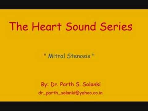 Mitral Stenosis - Sound  e outros sons cardíacos e pulmonares