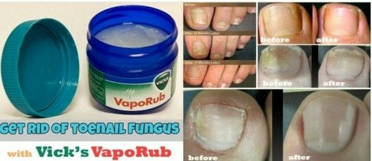 There is an ingredient in Vapo Rub that prevents fungi from growing.  If you have toenail fungus, just rub some of this compound onto your nail, and stick a sock on to never see that fungus again!