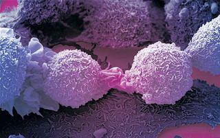 """Câncer: Oito desafios que a ciência precisa vencer  Em um levantamento inédito, alguns dos principais pesquisadores do mundo na área de oncologia fizeram um levantamento sobre as """"grandes questões"""" que a pesquisa sobre o câncer ainda precisa enfrentar."""