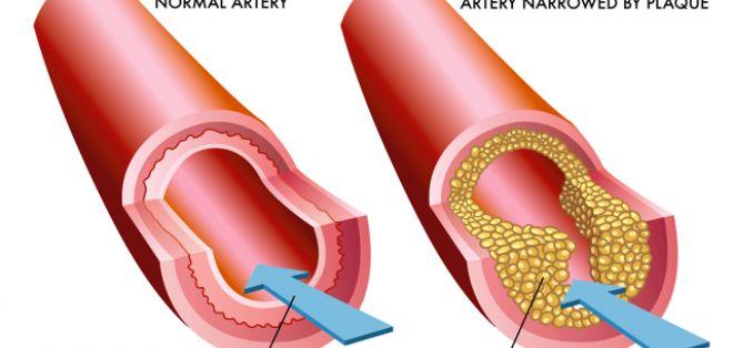 Remediul natural care curata sangele de grasimile in exces