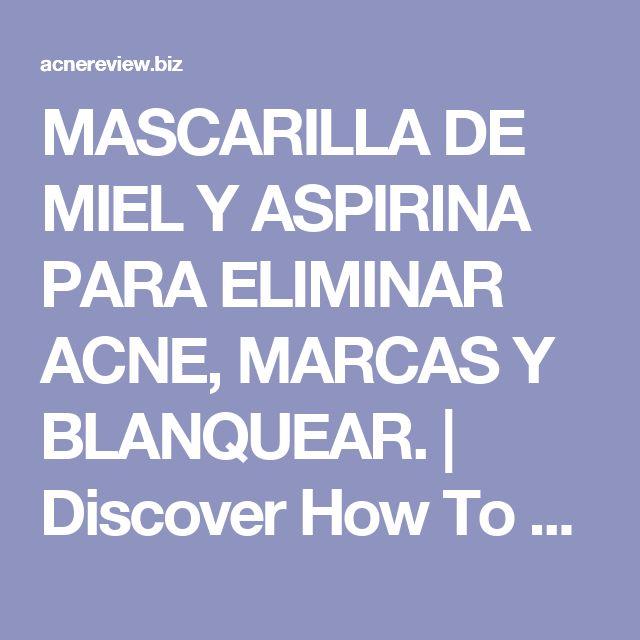 MASCARILLA DE MIEL Y ASPIRINA PARA ELIMINAR ACNE, MARCAS Y BLANQUEAR.   Discover How To Cure Acne