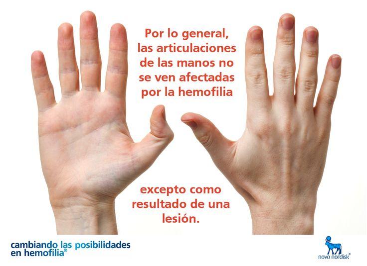 Por lo general, las articulaciones de las manos no se ven afectadas por la #hemofilia, excepto como resultado de una lesión.