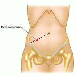 McBurney point - definition of McBurney point by Medical dictionary.  a point of special tenderness in appendicitis, about one-third the distance between the right anterior superior iliac spine and the umbilicus.