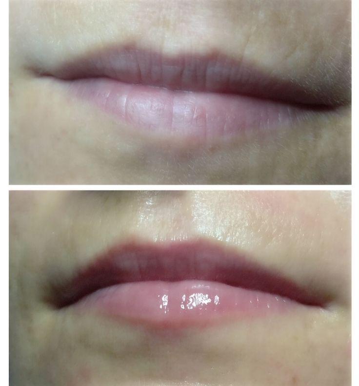 """Hot Lips"" Lip Plumper"