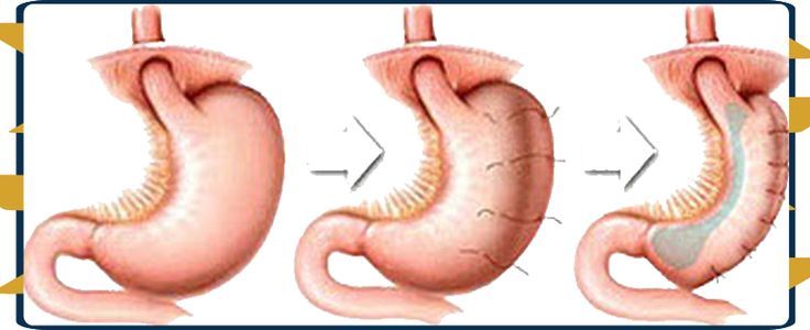 Many bariatric surgeons are calling it the most exciting advancement in weight loss surgery since the development of the adjustable gastric band.  #Cheap_Gastric_Sleeve_Plication_Package_in_Tijuana_Mexico