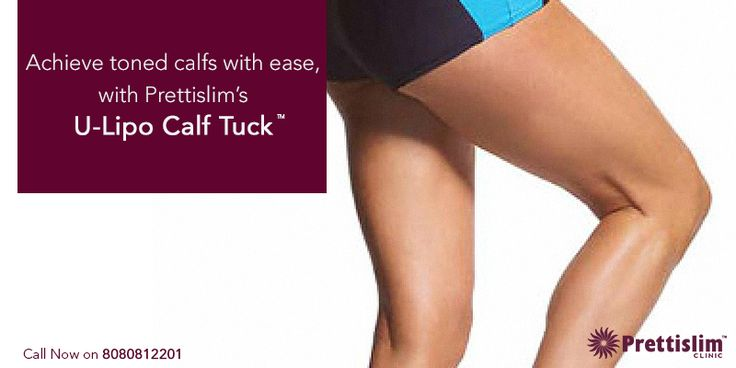 #ULipo This #Monsoon, it's time to shape up!  Get in shape with our U-Lipo Calf Tuck™,  and achieve the legs you've always dreamed of. http://bit.ly/2oOhovF  Chat with a Prettislim Doctor NOW: www.bit.ly/ChatWithOurDoctor