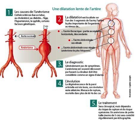 Anévrisme de l'aorte abdominale sous rénale : Qu'est ce que c'est ? | Maladie | Santé | LeFigaro.fr - Santé