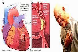 http://deagarictop.com/cara-mengobati-penyumbatan-pembuluh-darah-di-jantung/ Cara Mengobati Penyumbatan pembuluh Darah di Jantung Secara Alami Dengan AgaricTop