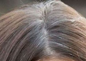 How-To Hair Girl   how to grow out gray hair Archives