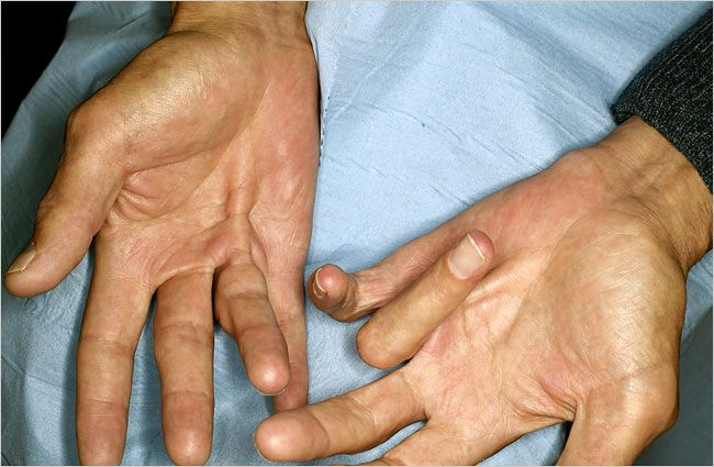 A new procedure for treating Dupuytren's disease is gaining in popularity.
