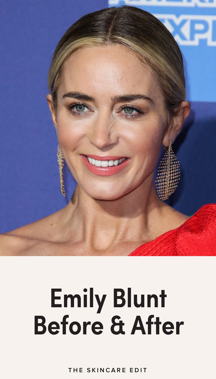 Emily Blunt Before And After In 2020 Emily Blunt Blunt