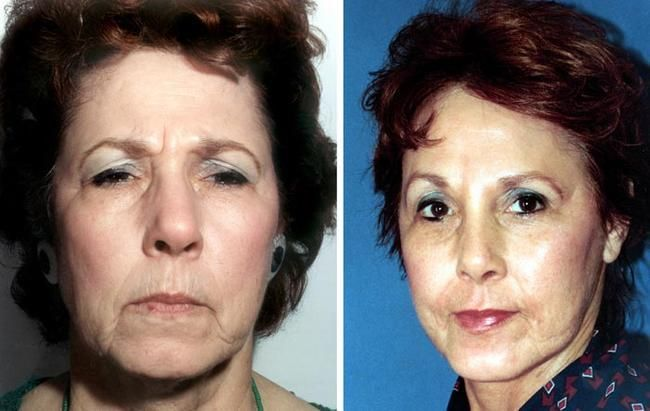 Canthopexy   A Lower Blepharoplasty Procedure   Cosmetic Town  Celebrity Lower Blepharoplasty