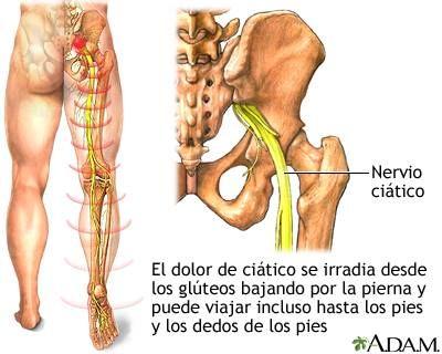 CIATICA II. El músculo piramidal de la pelvis, situado en las capas profundas de la pelvis, bajo los glúteos,es uno de los encargados de mantenernos erguidos, y uno de los culpables de pisar mal, un indicador para identificar el problema es observar el desgaste de la suela de los zapatos. Si es en la parte externa del talón es posible que tenga alguna relación,