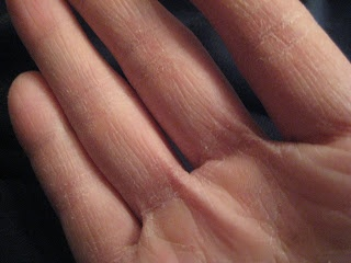 Leslie has transformed her hands from being rough, cracked, bleeding and painful to the softest, smoothest, most supple skin she has had for a long time.  Read about her skin care challenge story.  #skincare, #skin, #hands, #dryness, #beauty, #cosmetics.  www.askcosmetics.com